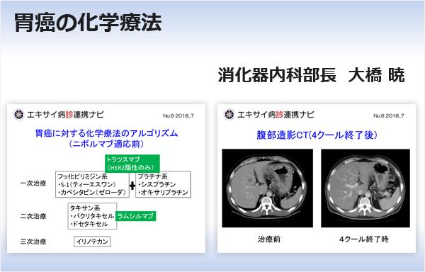 胃癌の化学療法 消化器内科部長 大橋 暁